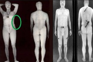 Body scanner blind spot