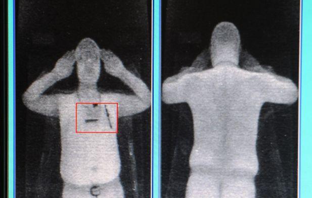 X-Ray Backscatter Image